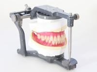 入れ歯(義歯)製作
