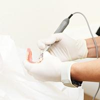 訪問歯科診療における義歯の作製・調整